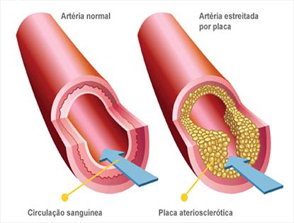 O que é Trombose Arterial Aguda?